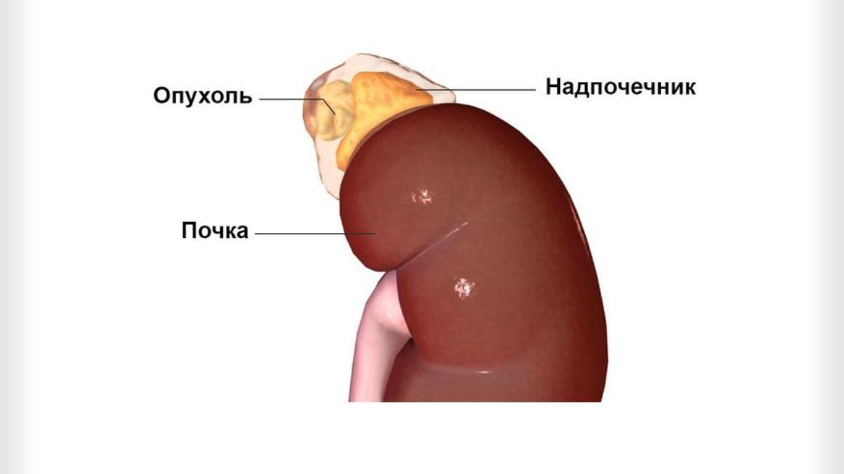 Опухоли надпочечников